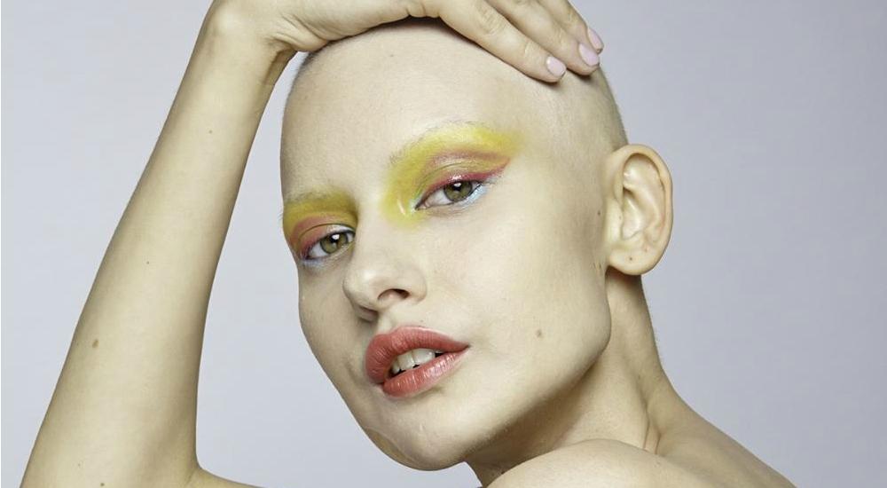 Modelo que perdió la mitad de mandíbula por el cáncer posa por primera vez